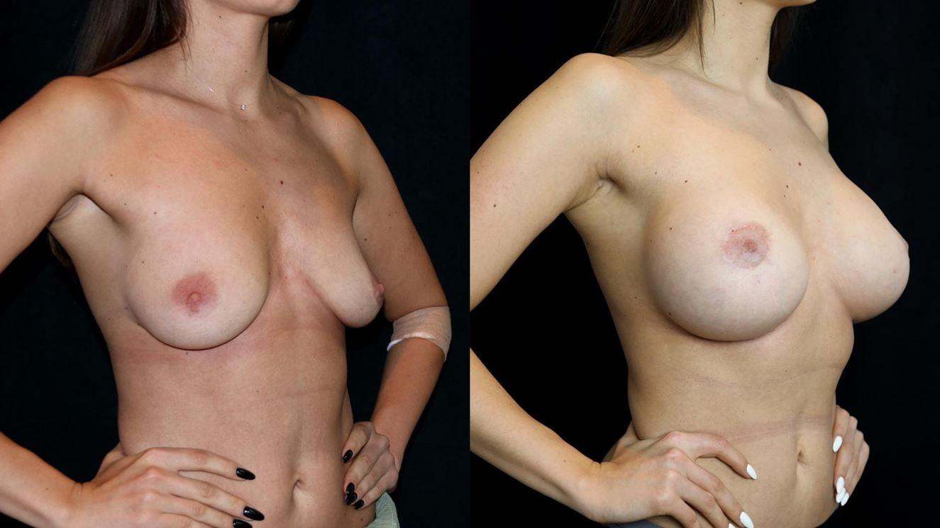увеличение груди имплантами фото