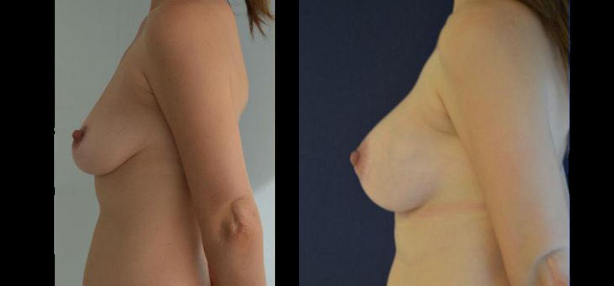 подтяжка груди фото до и после