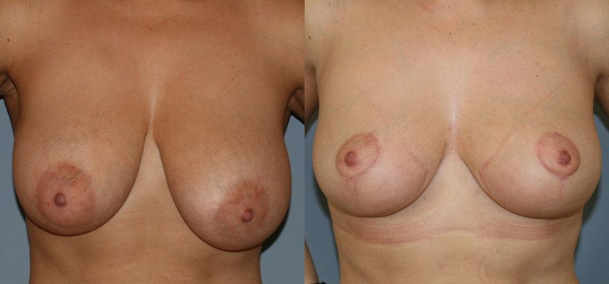 редукционная маммопластика фото до и после