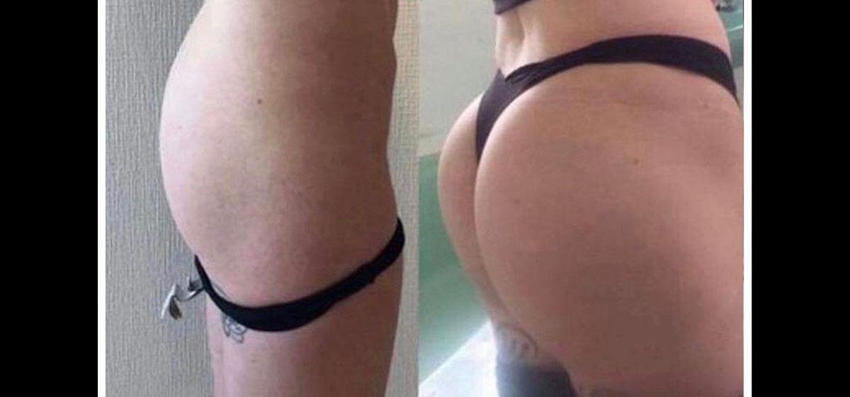 пластика ягодиц фото до и после