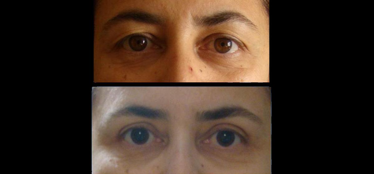 блефаропластика до и после киев фото