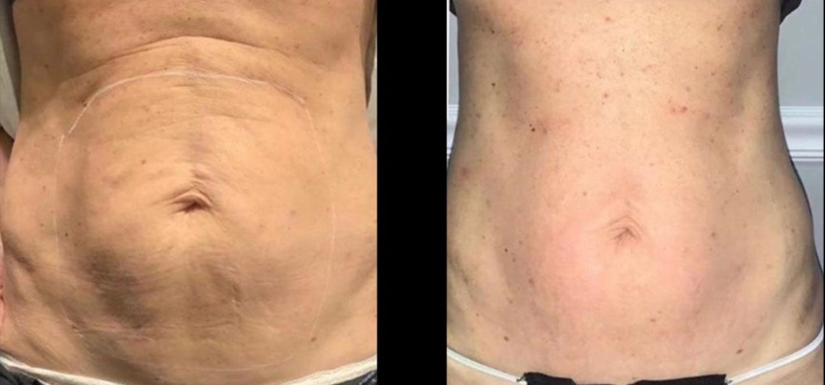 Не хирургическая подтяжка живота BodyTite фото до после