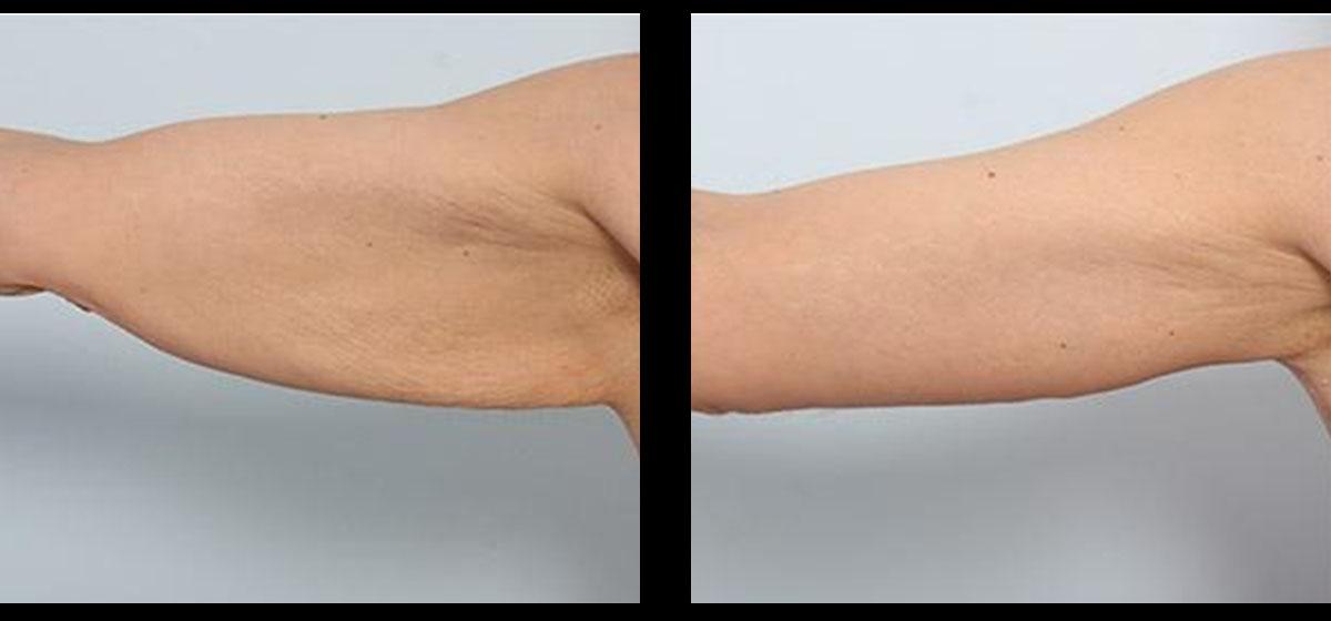брахиопластика фото до и после