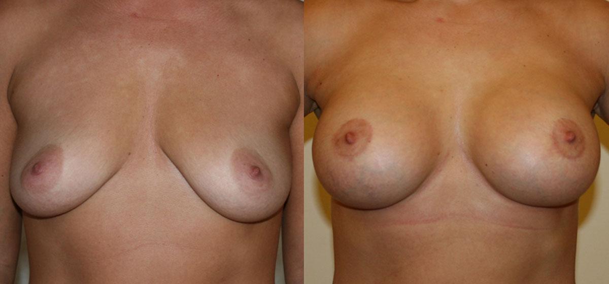 подтяжка груди с имплантами фото