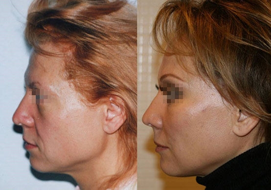 фейслифтинг фото до и после