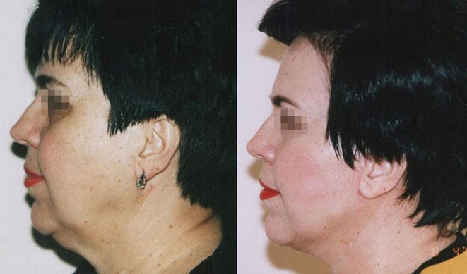 круговая подтяжка лифа фото до и после