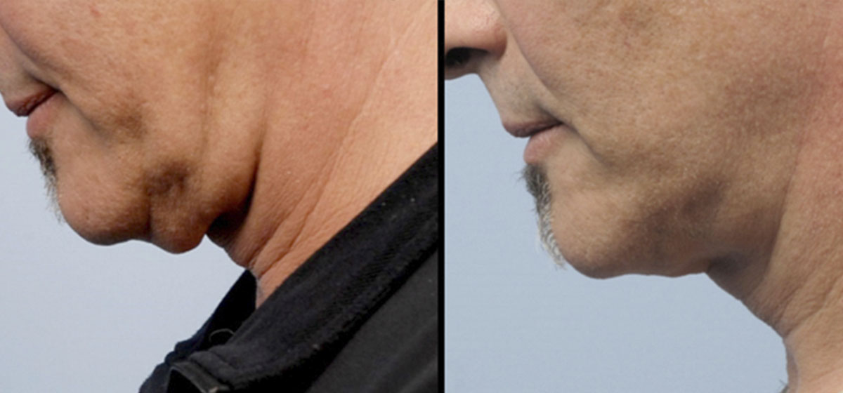 аппаратная подтяжка шеи