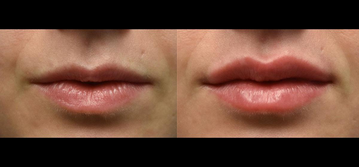 хейлопластика фото до и после