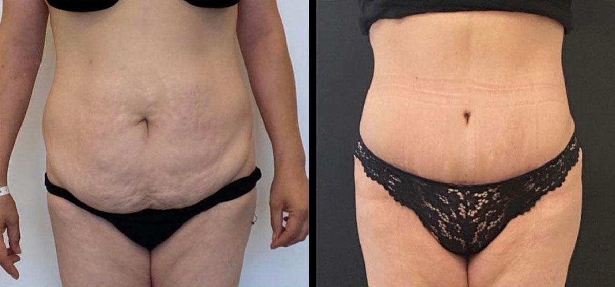 мини-абдоминопластика фото до и после