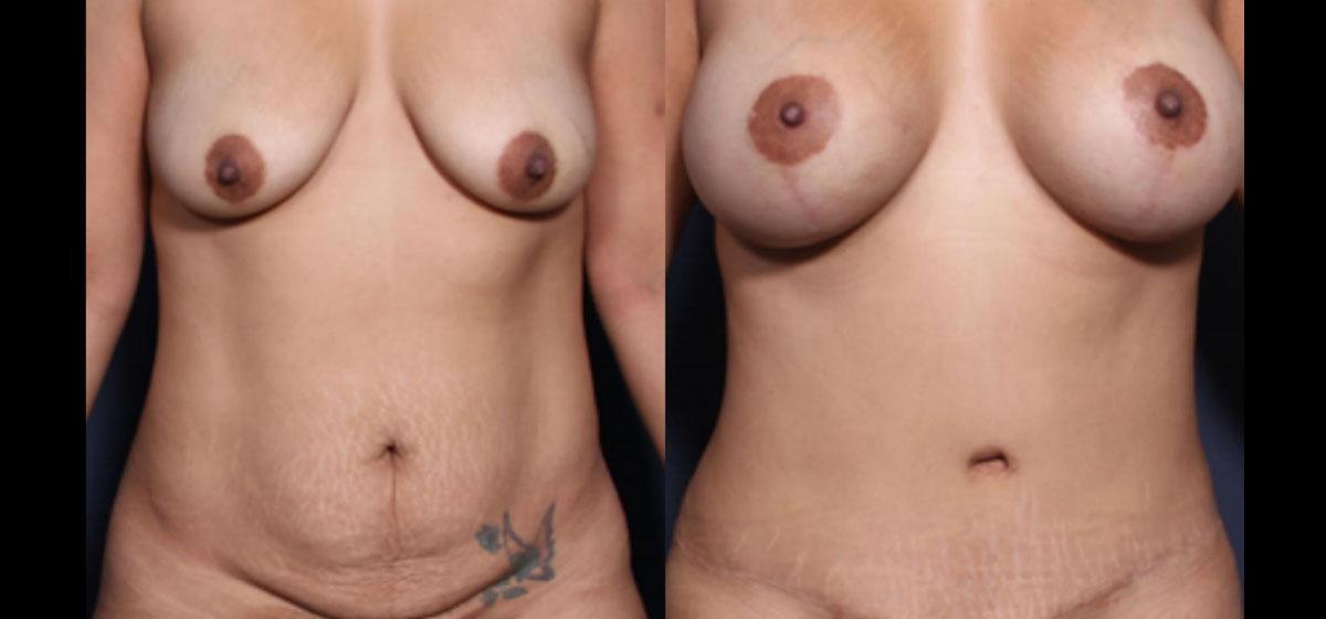 mommy makeover фото до и после