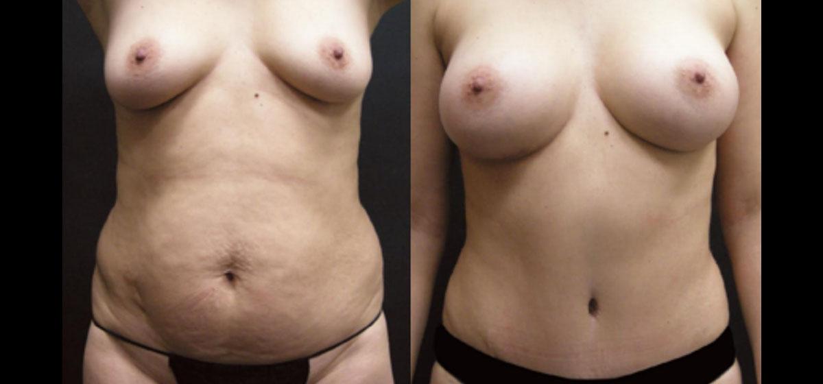 восстановление после родов фото до после