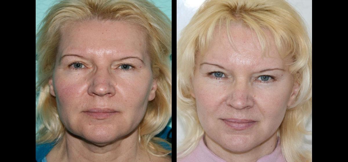 пластика лица и шеи фото