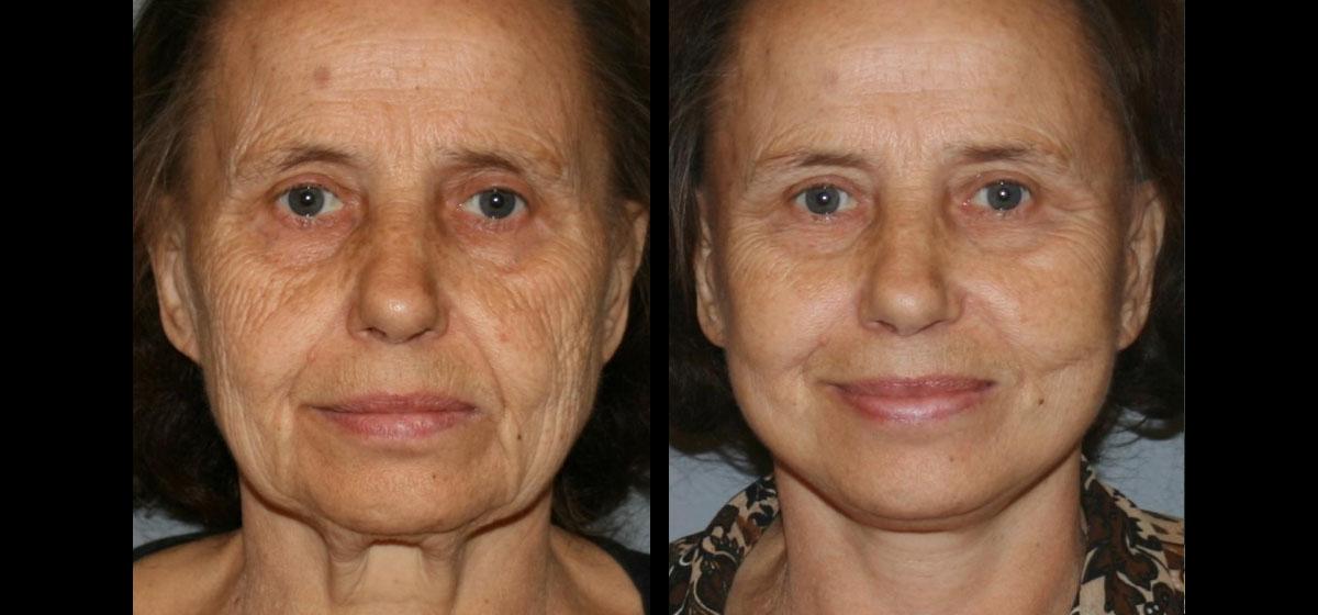 пластика лица и шеи фото до после