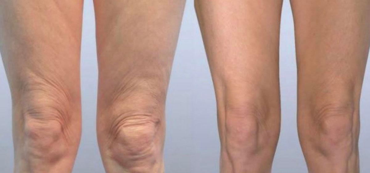 подтяжка колен фото до и после