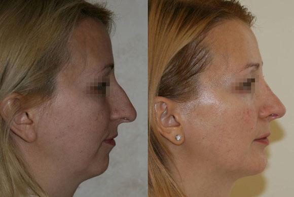 ринопластика фото до и после