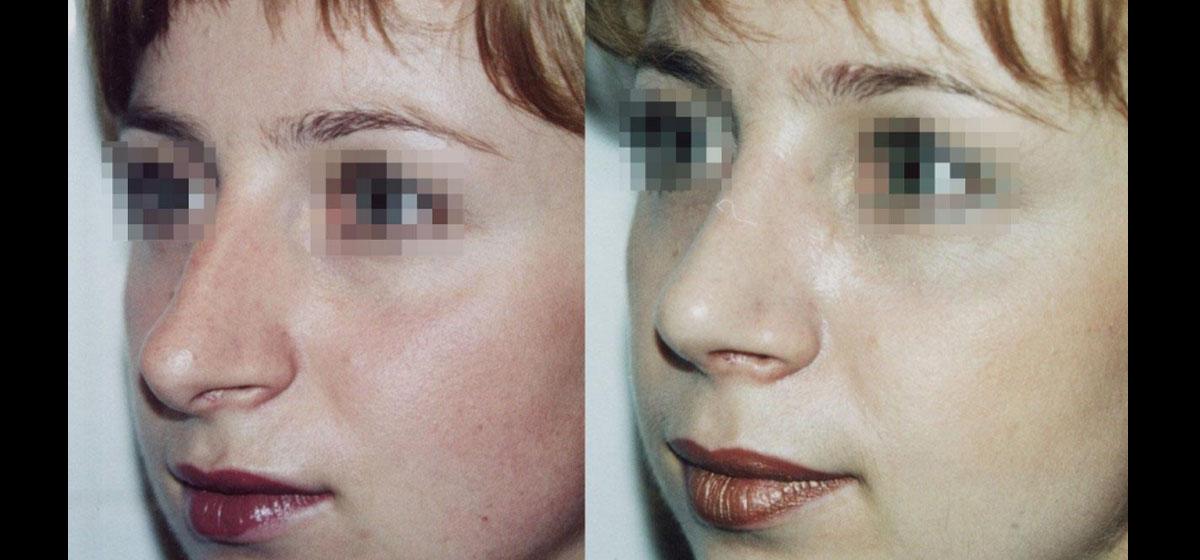 ринопластика фото до после