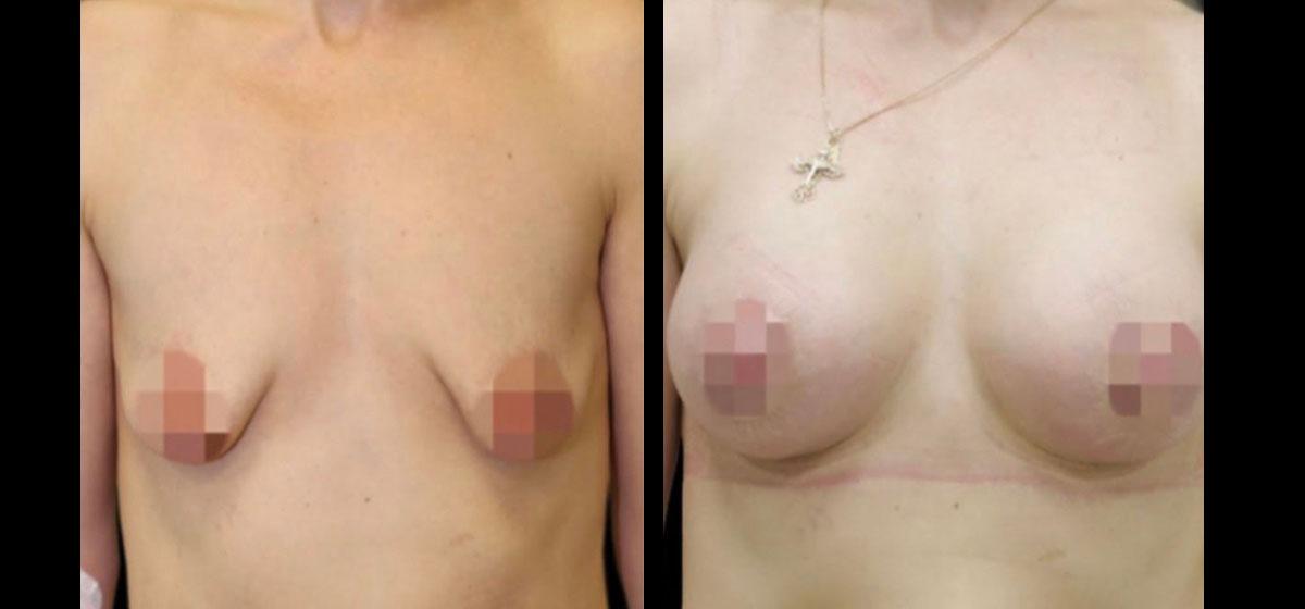Коррекция тубулярной груди фото