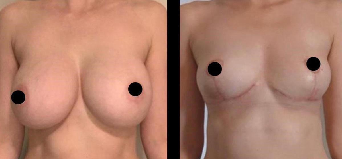 удаление имплантов до и после