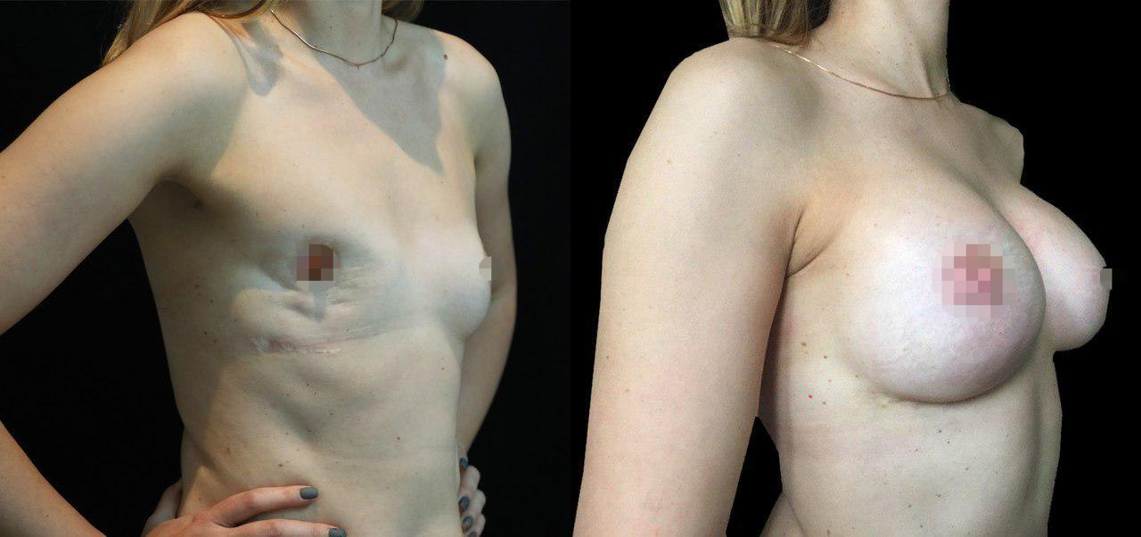 реконструкция груди фото до после